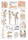 Uzskates materiāls - Osteoporoze